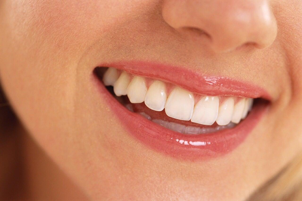 Hvite tenner ved hjelp av tannbleking
