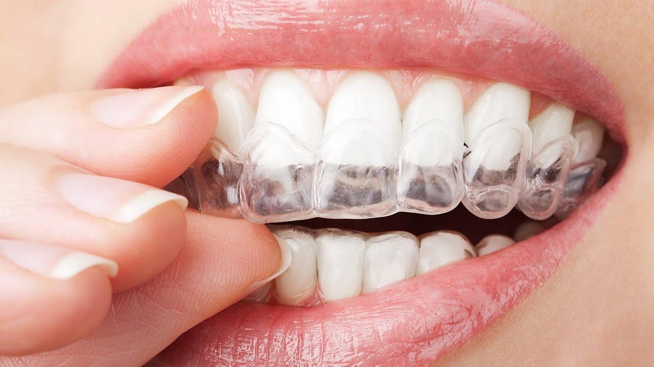 Hvordan påvirker behandlingen tennene
