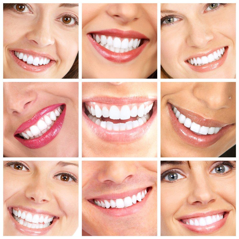 hvite tenner med tannbleking hjemme
