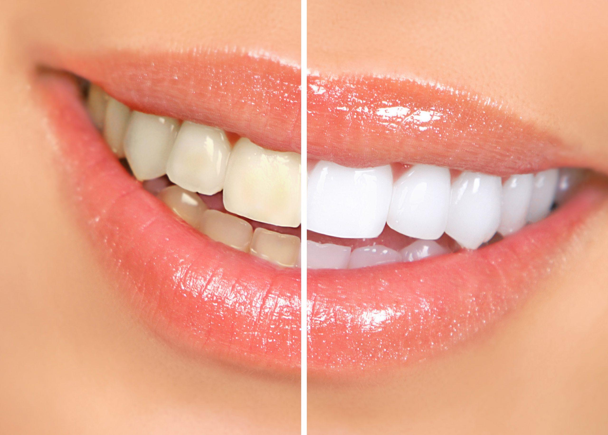 Hvorfor blir tennene misfarget